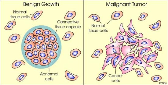 differences between benign and malignant tumors loving biology